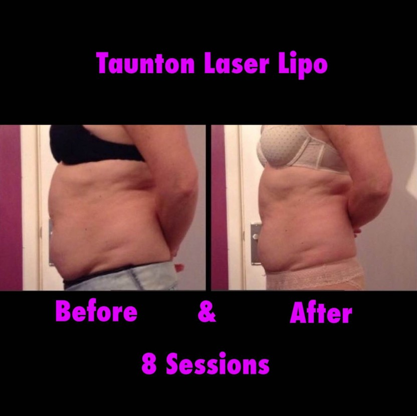 does laser lipo work reviews
