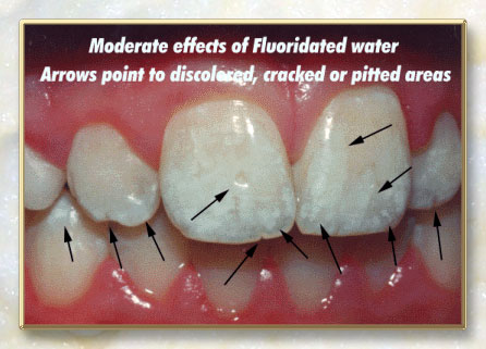 fluoride removal from water by adsorption a review